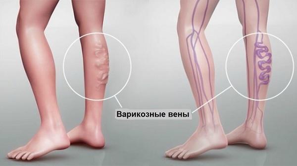 This is how varicose veins look like in stage II disease