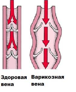 Il lavoro delle valvole venose in condizioni normali e con vene varicose