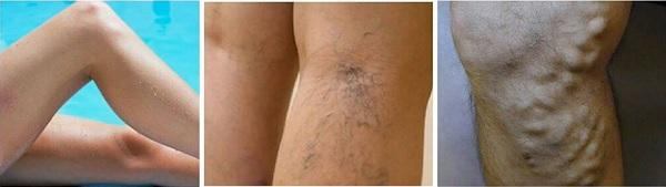So there are varicose veins on the legs