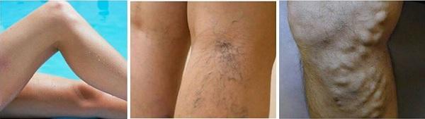 Ecco come appaiono le vene varicose sulle gambe.