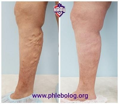 A good treatment result for varicose veins without waiting for complications