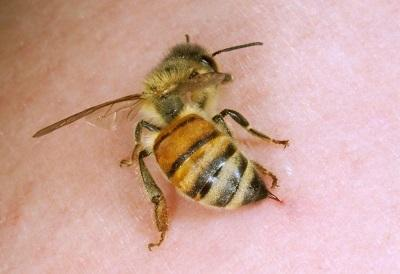 Apitherapy - bee treatment