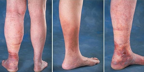 Advanced forms of venous insufficiency - trophic eczema and ulcers
