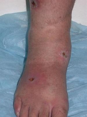 Gamba dopo il trattamento della sanguisuga