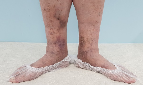 darkening of the skin with varicose veins (hyperpigmentation)