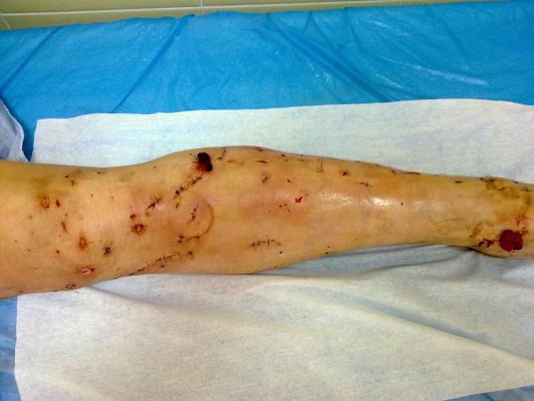 Leg view after classic vein surgery