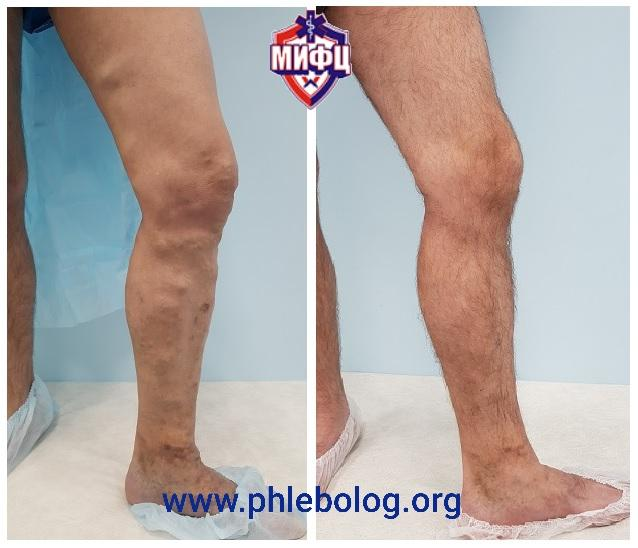 The result of treatment of varicose veins with a laser with a new wavelength 1940 Nm
