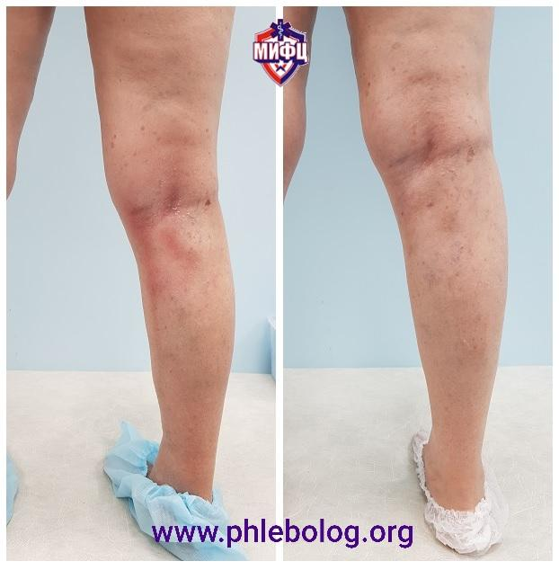 Photos before and after the treatment of acute thrombophlebitis in 1 month