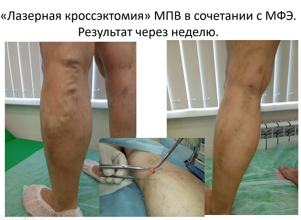 Report of phlebologist from Moscow Kurginyan Kh.M.
