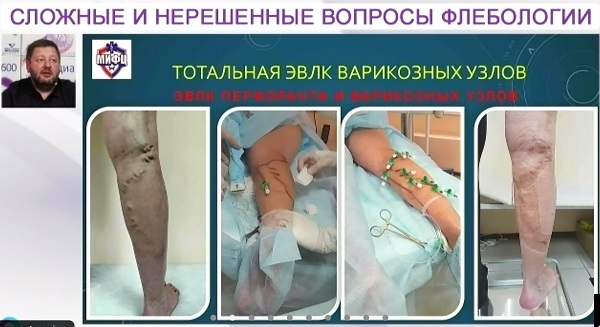 The results of varicose veins treatment by the Total EVLK method performed by D.A. Fedorov.