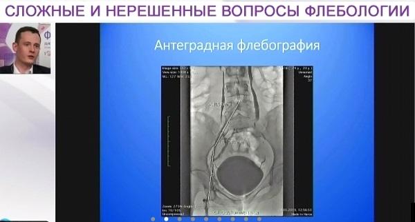 Phlebologists Club of Moscow 02 12 Iashkin 1