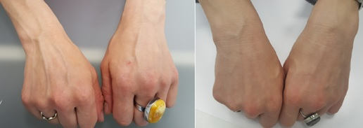 Results of sclerotherapy on hands after 2 months