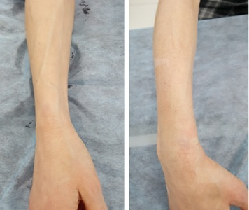 Results of sclerotherapy on the forearm after 2 months