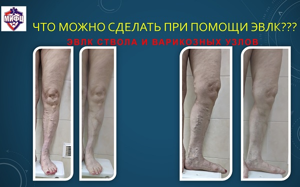 EVLK results of varicose veins using a 1940 nm laser