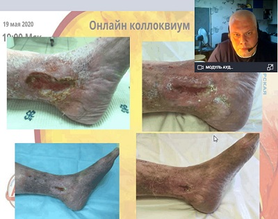 Outpatient surgery of trophic ulcers - reports S.N. Yakushkin. (Moscow)