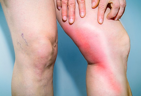 Leg pain with thrombosis