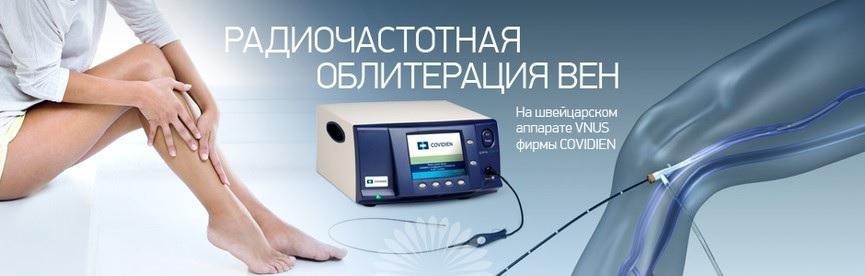 Радиочастотная облитерация вен нижних конечностей (РЧО, Closure FAST) в Москве