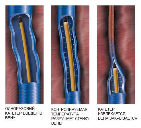 Il principio di funzionamento dell'obliterazione a radiofrequenza delle vene