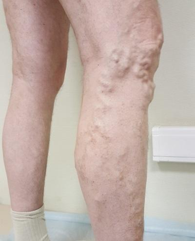 Patient with varicose veins before RFO procedure
