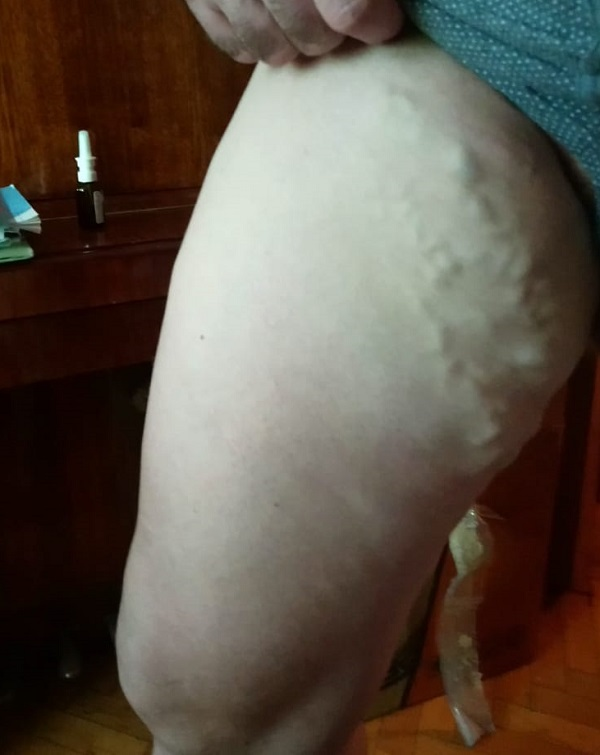 Relapse of varicose veins in a patient 3 years after surgery