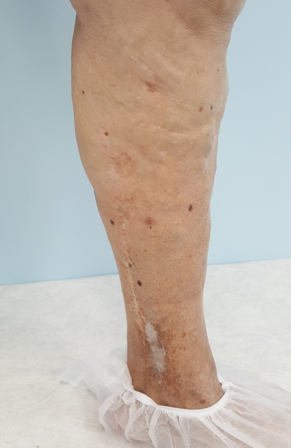 Relapse of varicose veins with the development of trophic eczema