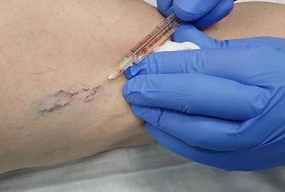 Rimozione delle vene dei ragni mediante microscleroterapia