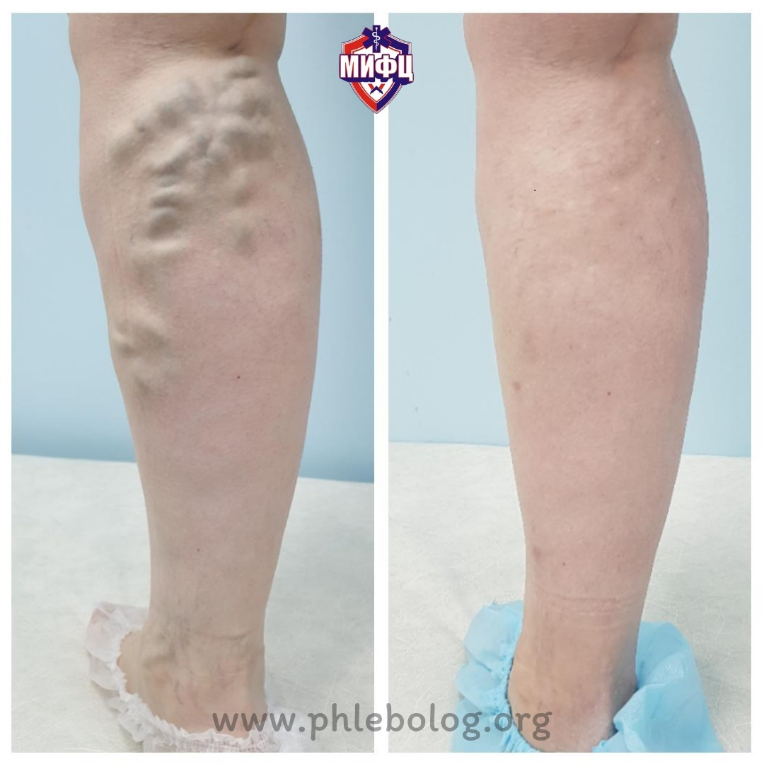 The result of varicose veins treatment after 6 months in our clinic