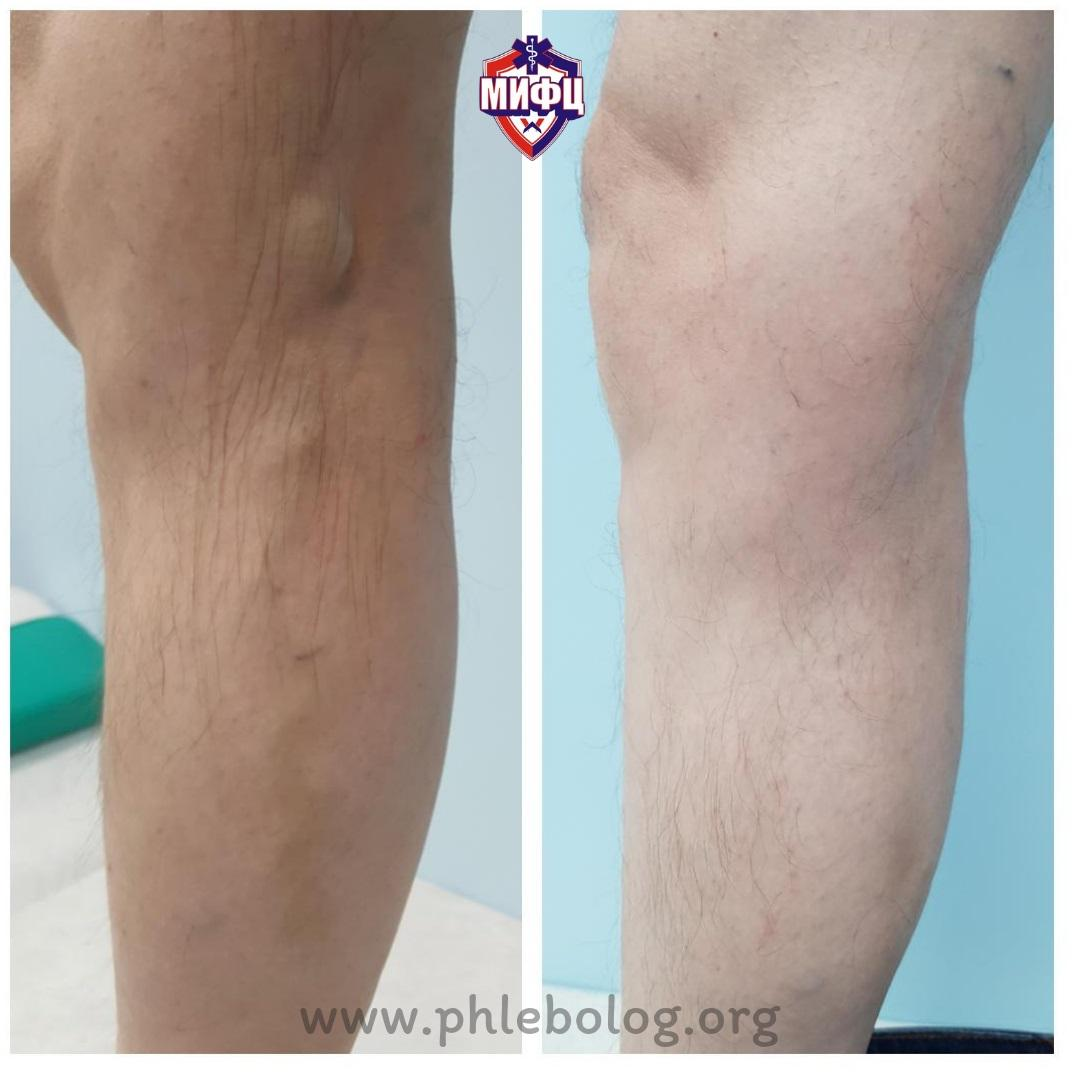 The result of treating a patient in our phlebology center using the EVLK method