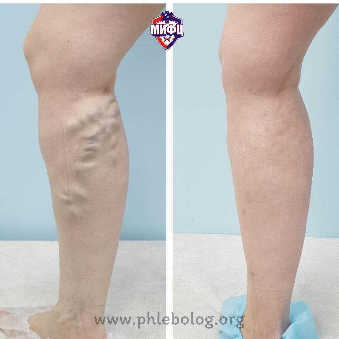 The result of treating a patient in an innovative phlebology center by RFA