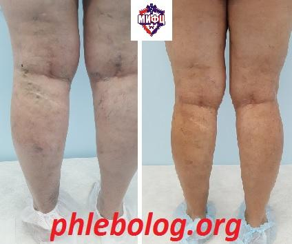 The result of treatment of the patient in the phlebology clinic by compression sclerotherapy