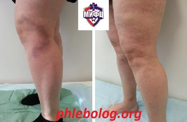 The result of treatment of a patient with acute thrombophlebitis in our phlebology clinic