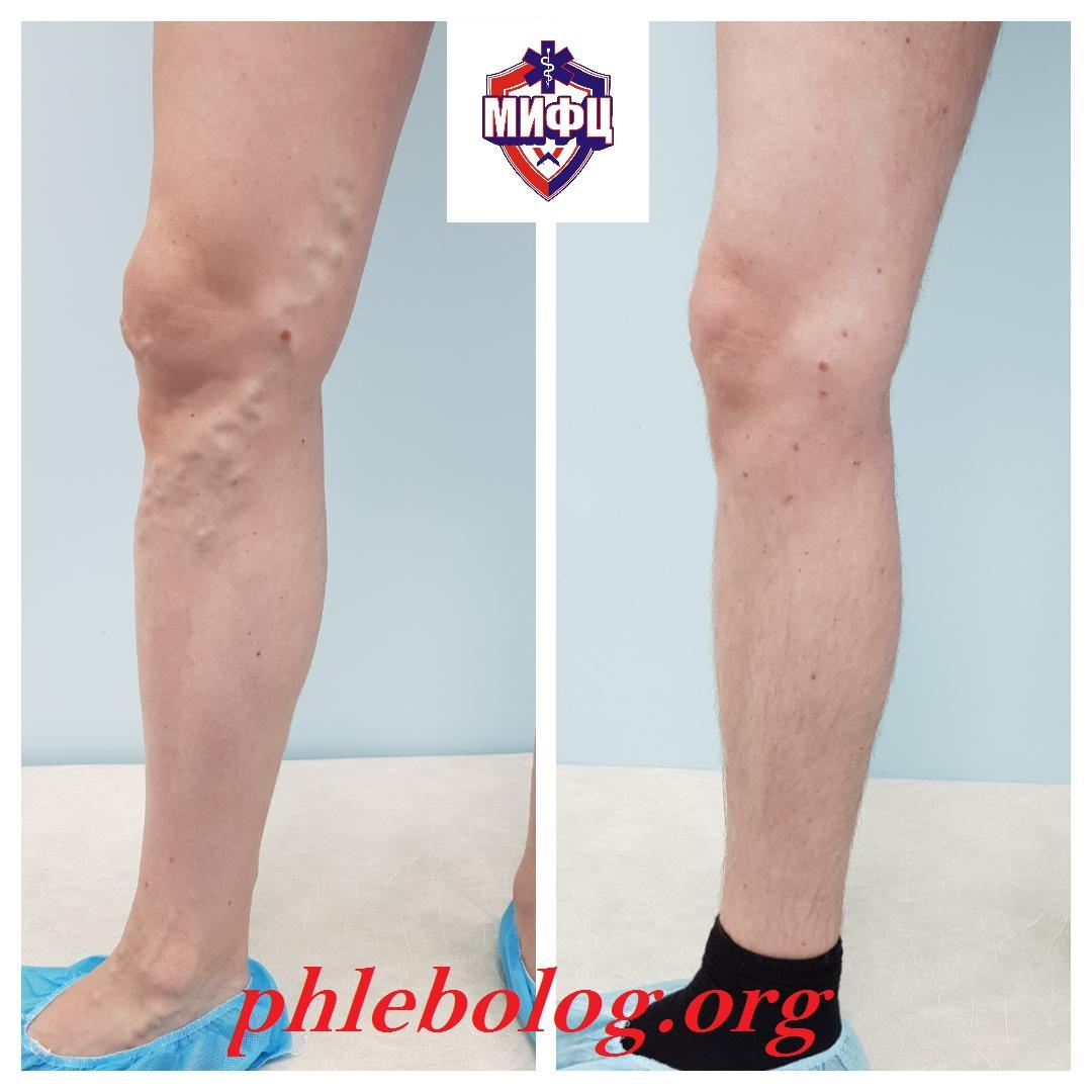 The result of treatment of a patient from Voronezh by endovenous laser coagulation (EVLK) using German Biolitec technology