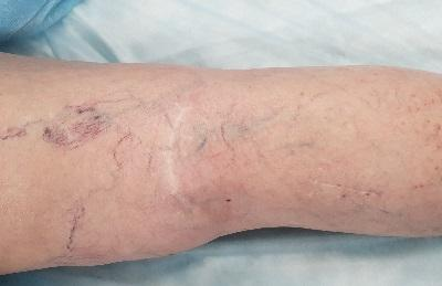 Scars and scars after classical phlebectomy