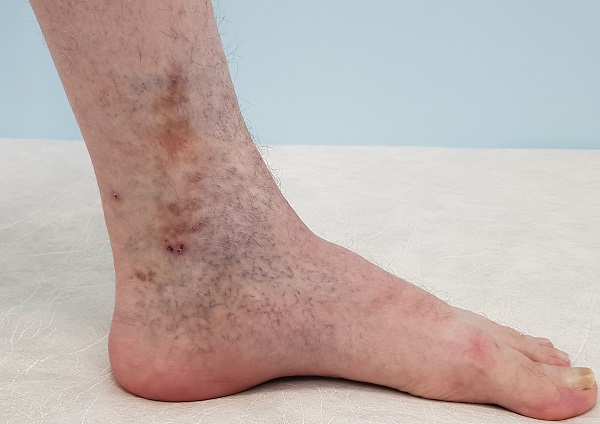 Skin pigmentation (darkening of the skin)