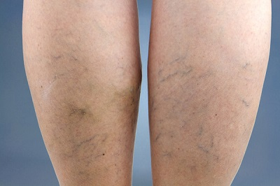 This is how spider veins on the legs usually look.