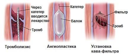 Trattamenti chirurgici per la trombosi venosa profonda