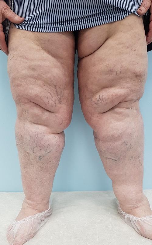 Swelling with lipedema