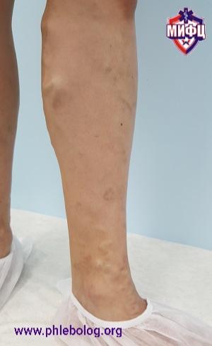 Nella foto vene varicose in una giovane ragazza di 22 anni