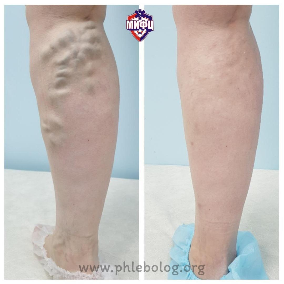 The result of treatment with miniflebectomy. Photos before and after miniflebectomy.
