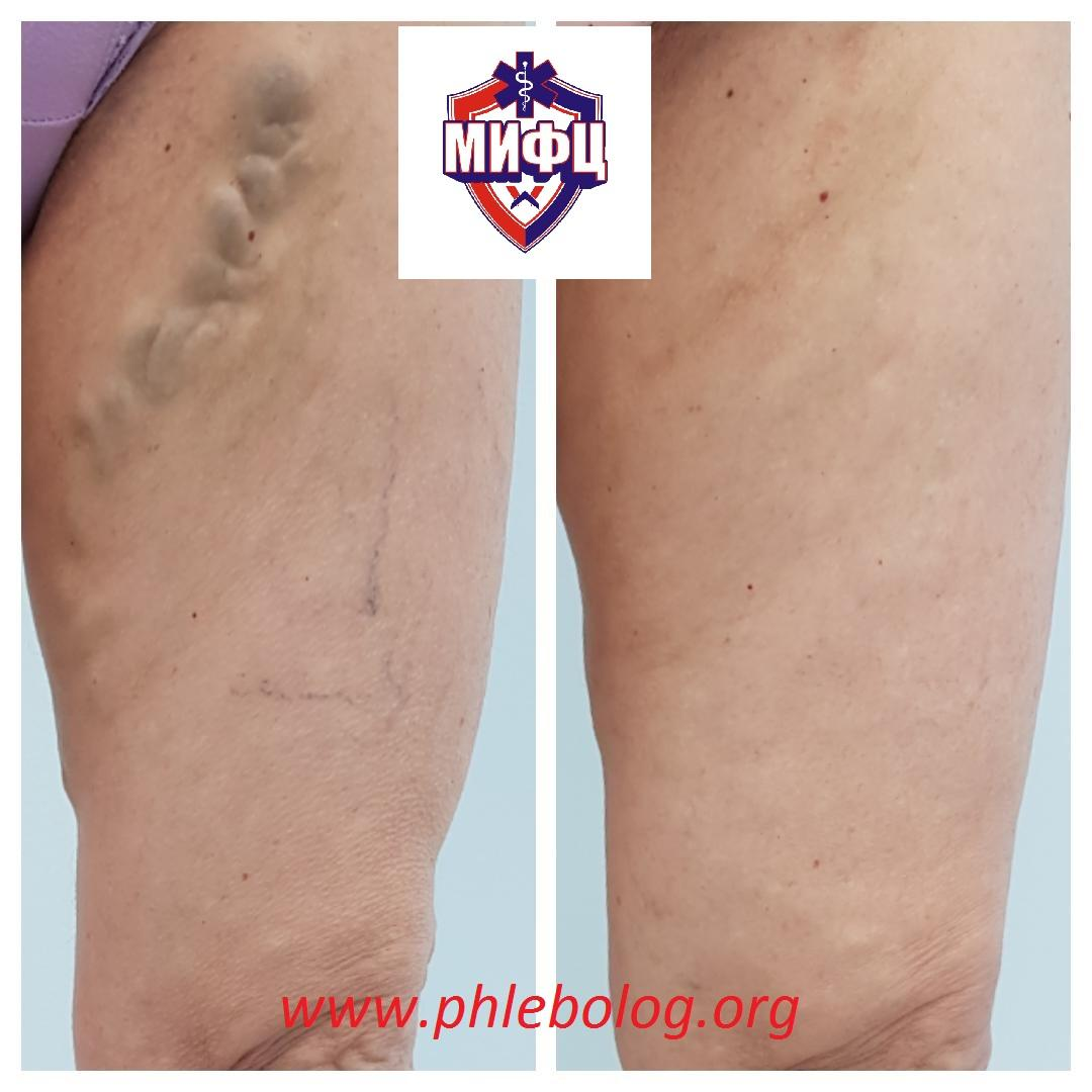 The result of the treatment of varicose veins of the lower extremities