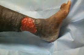 Large trophic ulcer on the lower leg