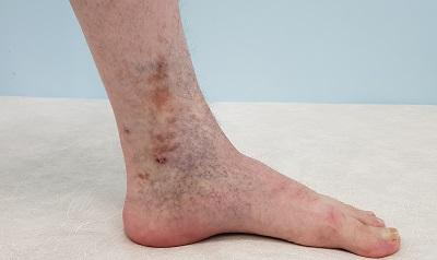 Trophic venous eczema