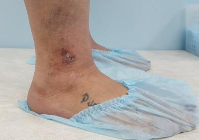 Venous eczema of atypical localization