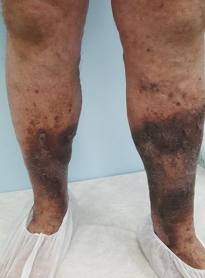 Trophic eczema of the lower extremities