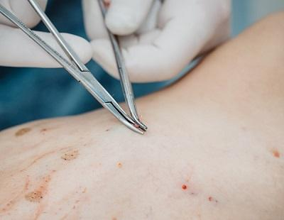 Varadi miniflebectomy in Moscow