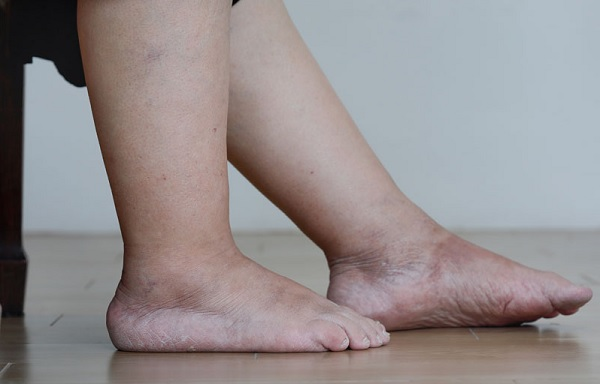 Varicose veins and swelling of the legs