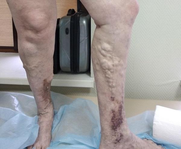 Cosa succede se le vene varicose non vengono trattate