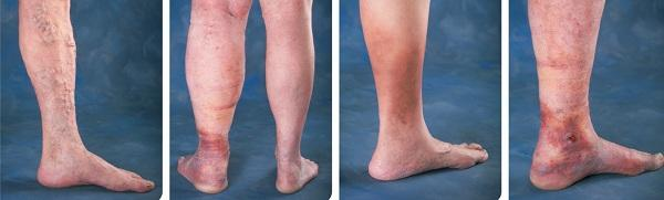 Complications of varicose veins