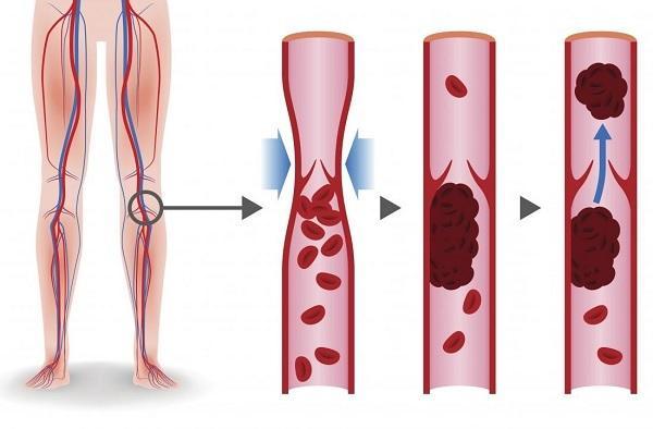 Il meccanismo di sviluppo della trombosi venosa profonda