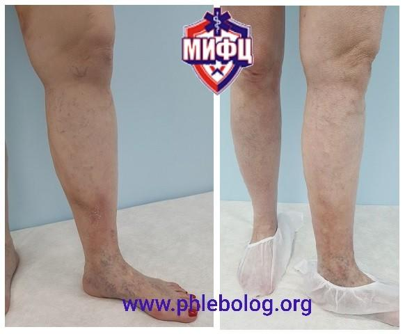 Treatment of thrombophlebitis in the field of trophic disorders